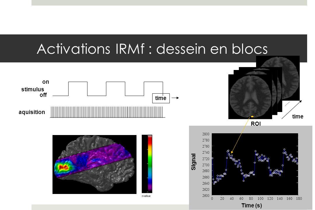 -2 2 6 14 10 t-value stimulus off on aquisition time Activations IRMf : dessein en blocs