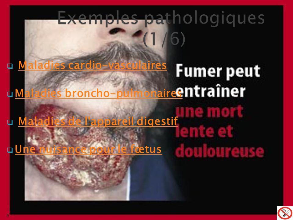 Maladies cardio-vasculairesMaladies cardio-vasculaires Maladies broncho-pulmonaires Maladies broncho-pulmonaires Maladies de l appareil digestifMaladies de l appareil digestif Une nuisance pour le fœtus Une nuisance pour le fœtus 9