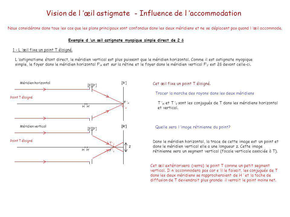 Vision de l œil astigmate - Influence de l accommodation Exemple d un œil astigmate myopique simple direct de 2 2 - L œil fixe un point T situé à 40 cm.