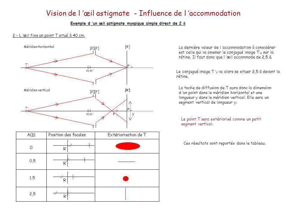 R R R 0,5 R 1,5 2,5 Vision de l œil astigmate - Influence de l accommodation Exemple d un œil astigmate myopique simple direct de 2 Quelle accommodation va mettre en jeu le sujet.