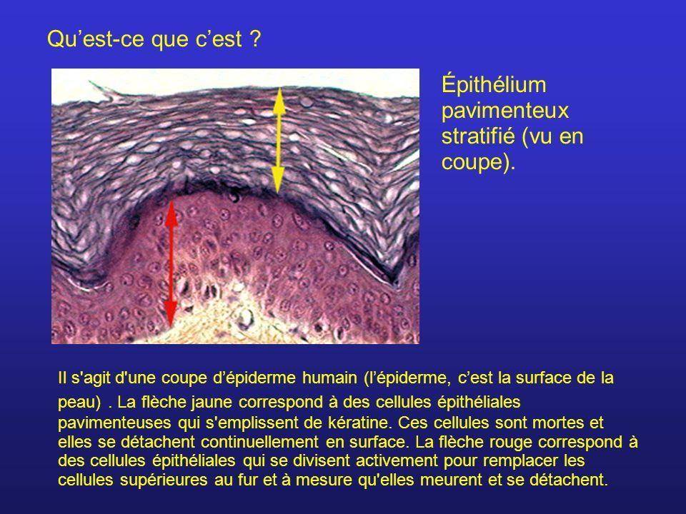 Quest-ce que cest ? Épithélium pavimenteux stratifié (vu en coupe). Il s'agit d'une coupe dépiderme humain (lépiderme, cest la surface de la peau). La