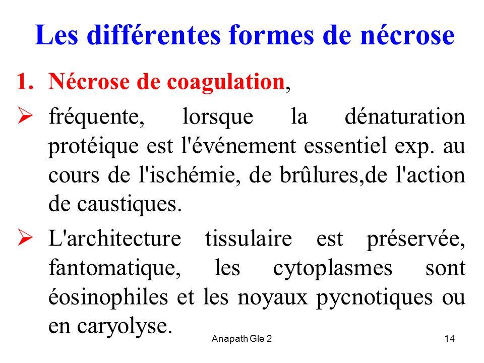Anapath Gle 214 Les différentes formes de nécrose 1.Nécrose de coagulation, fréquente, lorsque la dénaturation protéique est l'événement essentiel exp