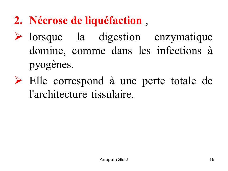 Anapath Gle 215 2.Nécrose de liquéfaction, lorsque la digestion enzymatique domine, comme dans les infections à pyogènes. Elle correspond à une perte
