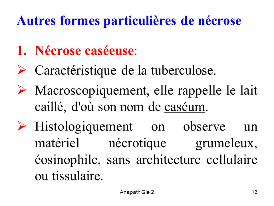 Anapath Gle 216 Autres formes particulières de nécrose 1.Nécrose caséeuse: Caractéristique de la tuberculose. Macroscopiquement, elle rappelle le lait