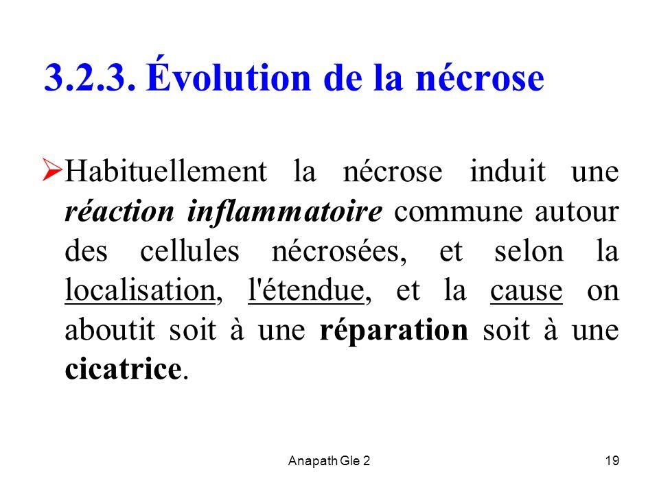 Anapath Gle 219 3.2.3. Évolution de la nécrose Habituellement la nécrose induit une réaction inflammatoire commune autour des cellules nécrosées, et s