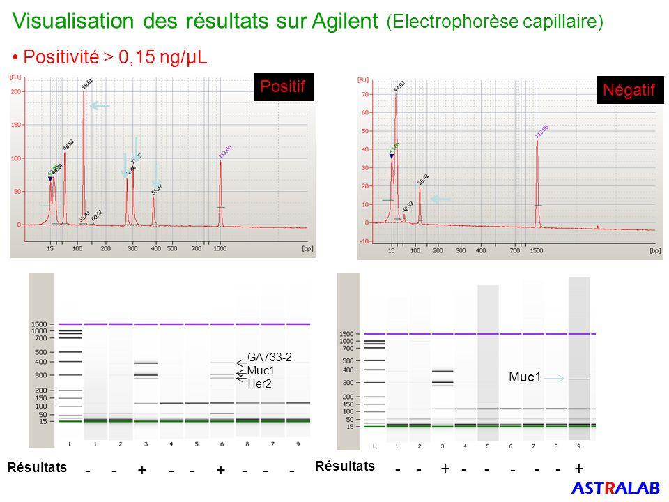Négatif Positif Visualisation des résultats sur Agilent (Electrophorèse capillaire) Positivité > 0,15 ng/µL Muc1 Résultats -+-+----- -+---+-- GA733-2 Muc1 Her2 - ASTRALAB