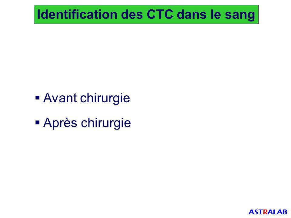 Identification des CTC dans le sang ASTRALAB Avant chirurgie Après chirurgie