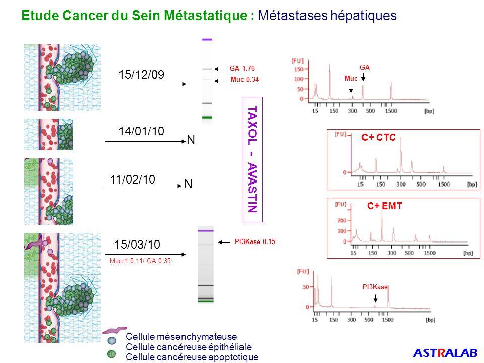 Etude Cancer du Sein Métastatique : Métastases hépatiques ASTRALAB Muc 1 0.34/ GA 1.76 C+ CTC C+ EMT GA Muc PI3Kase Muc 1 0.11/ GA 0.35 PI3Kase 0.15 Cellule mésenchymateuse Cellule cancéreuse apoptotique Cellule cancéreuse épithéliale 15/12/09 14/01/10 11/02/10 15/03/10 N N GA 1.76 Muc 0.34 TAXOL - AVASTIN