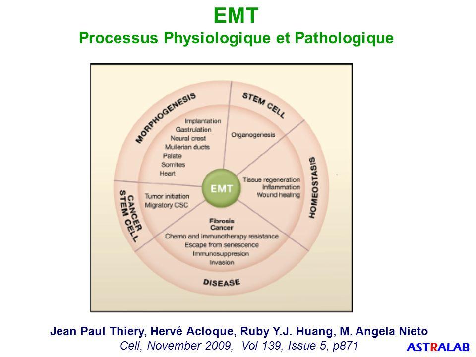 Piyush B Gupta, Christine L Chaffer & Robert A Weinberg Nature Medicine, 2009, vol 15, p1010 Cellule Cancéreuse Souche (CSC) : Transition Epithéliale Mésenchymateuse ASTRALAB