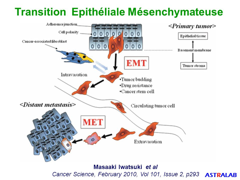 Masaaki Iwatsuki et al Cancer Science, February 2010, Vol 101, Issue 2, p293 Transition Epithéliale Mésenchymateuse ASTRALAB