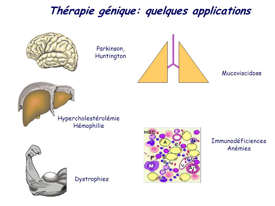 Parkinson, Huntington Hypercholestérolémie Hémophilie Dystrophies Mucoviscidose Immunodéficiences Anémies Thérapie génique: quelques applications