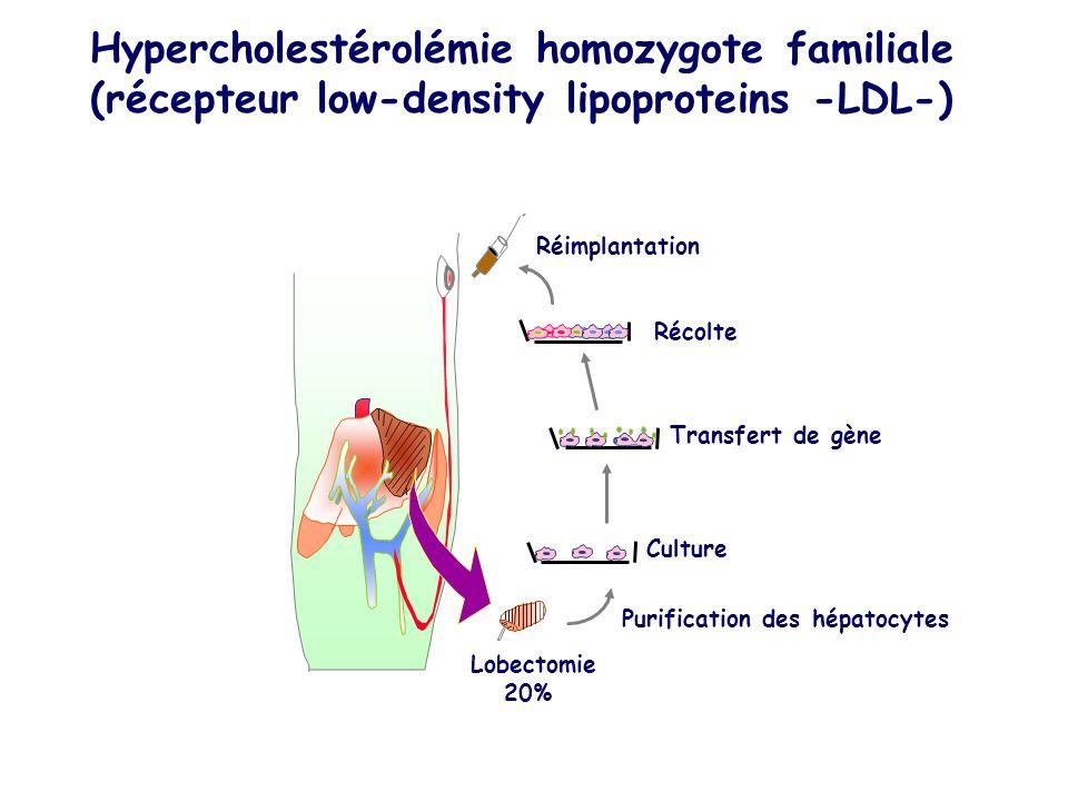 Hypercholestérolémie homozygote familiale (récepteur low-density lipoproteins -LDL-) Récolte Purification des hépatocytes Lobectomie 20% Réimplantation Transfert de gène Culture