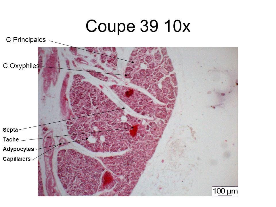 Coupe 39 10x Septa Tache Adypocytes Capillaiers C Oxyphiles C Principales