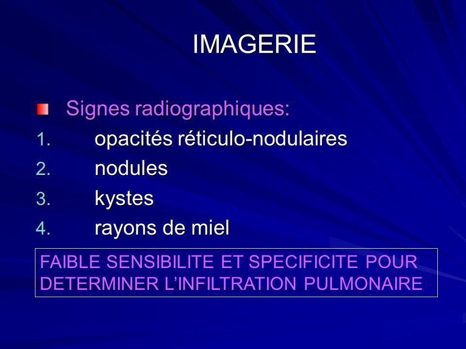 IMAGERIE IMAGERIE Signes radiographiques: 1. opacités réticulo-nodulaires 2. nodules 3. kystes 4. rayons de miel FAIBLE SENSIBILITE ET SPECIFICITE POU