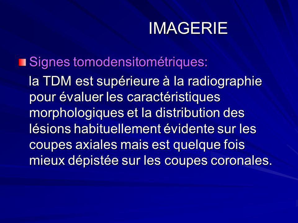 IMAGERIE IMAGERIE Signes tomodensitométriques: la TDM est supérieure à la radiographie pour évaluer les caractéristiques morphologiques et la distribu