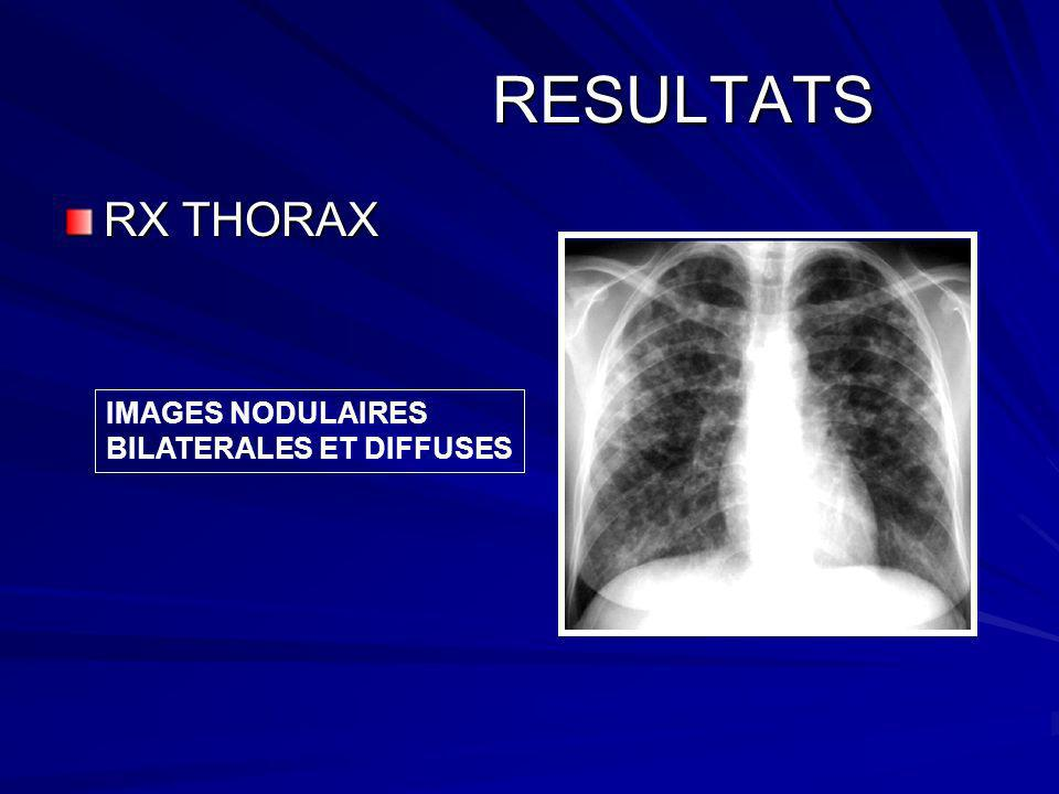 RESULTATS RESULTATS RX THORAX IMAGES NODULAIRES BILATERALES ET DIFFUSES