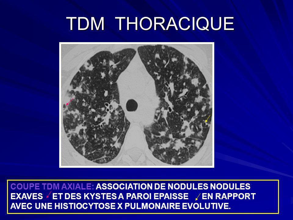 DISCUSSION: ANATOMIE PATHOLOGIQUE DISCUSSION: ANATOMIE PATHOLOGIQUE Lhistiocytose X est une granulomatose à cellules de langerhans.