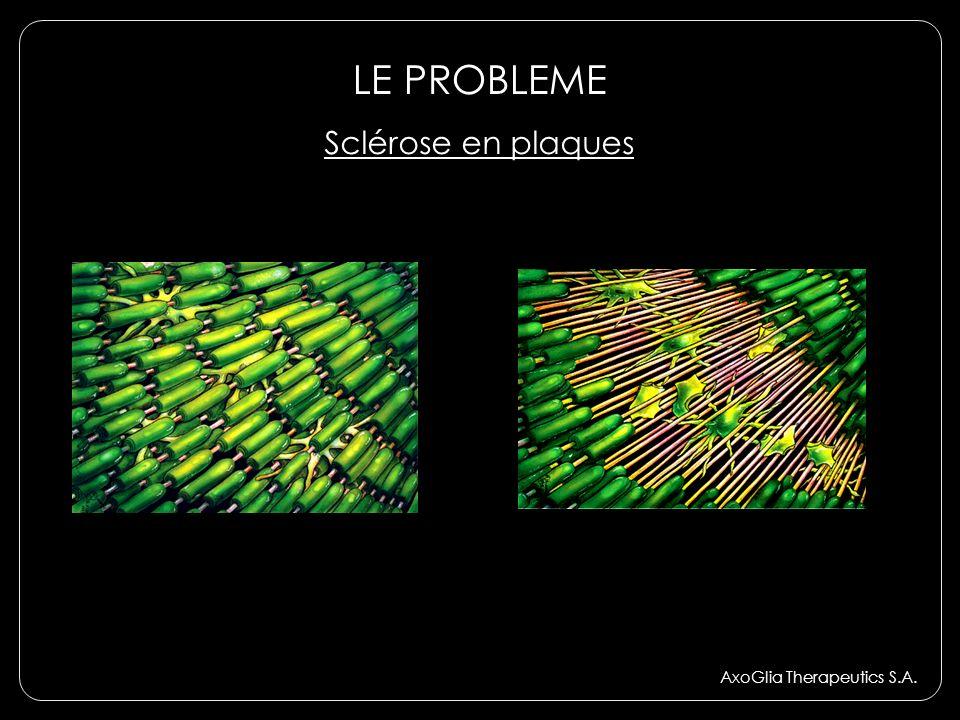 LE PROBLEME AxoGlia Therapeutics S.A. Sclérose en plaques