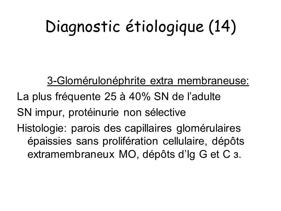 Diagnostic étiologique (14) 3-Glomérulonéphrite extra membraneuse: La plus fréquente 25 à 40% SN de ladulte SN impur, protéinurie non sélective Histol