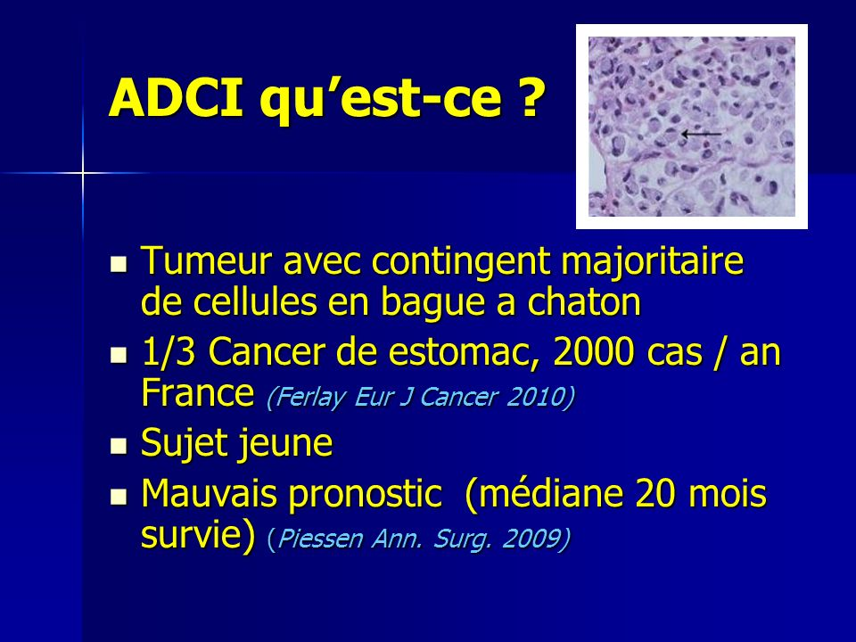 ADCI quest-ce .