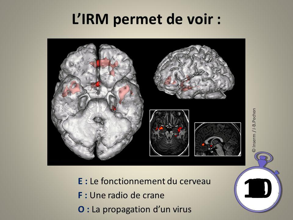 LIRM permet de voir : 10 8 9 6 7 4 5 21 03 © Inserm / J-B.Pochon E : Le fonctionnement du cerveau F : Une radio de crane O : La propagation dun virus