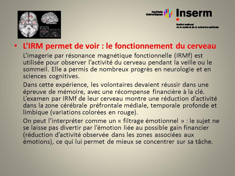 LIRM permet de voir : le fonctionnement du cerveau Limagerie par résonance magnétique fonctionnelle (IRMf) est utilisée pour observer lactivité du cer