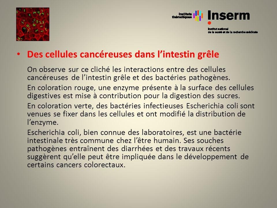 Des cellules cancéreuses dans lintestin grêle On observe sur ce cliché les interactions entre des cellules cancéreuses de lintestin grêle et des bacté
