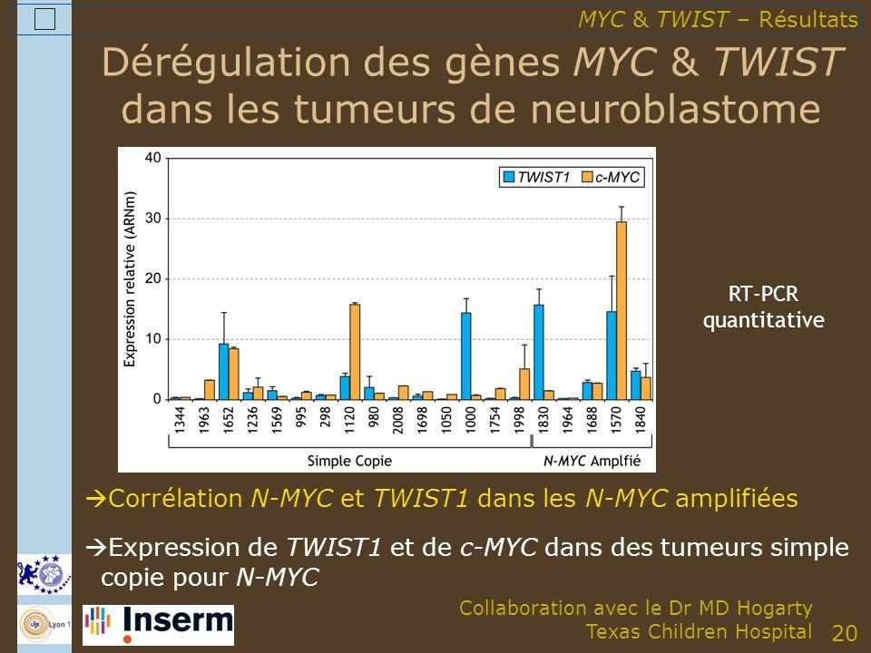 20 Dérégulation des gènes MYC & TWIST dans les tumeurs de neuroblastome Corrélation N-MYC et TWIST1 dans les N-MYC amplifiées Expression de TWIST1 et de c-MYC dans des tumeurs simple copie pour N-MYC MYC & TWIST – Résultats Collaboration avec le Dr MD Hogarty Texas Children Hospital RT-PCR quantitative