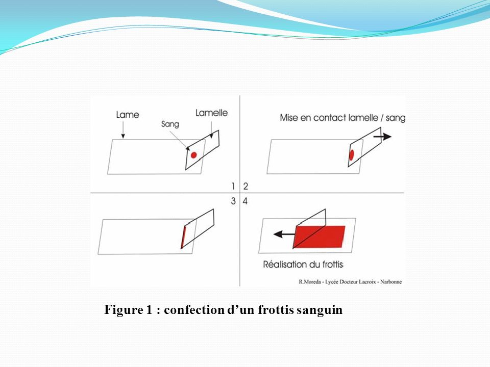 Figure 1 : confection dun frottis sanguin