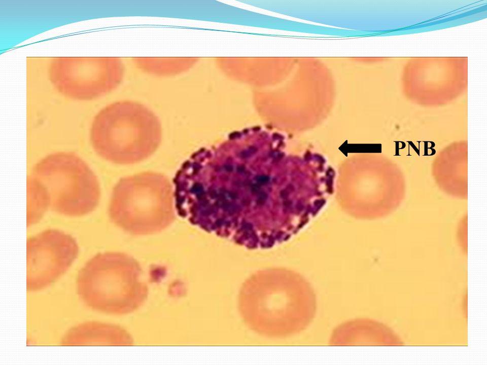 Macrocyte Microcytes Normocyte