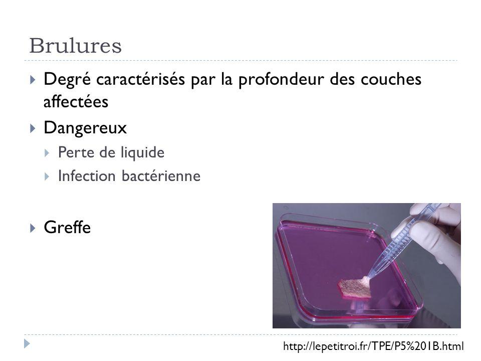 Brulures Degré caractérisés par la profondeur des couches affectées Dangereux Perte de liquide Infection bactérienne Greffe http://lepetitroi.fr/TPE/P5%201B.html