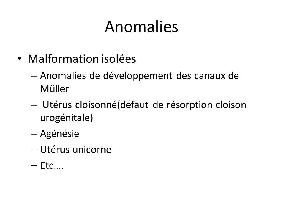 Anomalies Malformation isolées – Anomalies de développement des canaux de Müller – Utérus cloisonné(défaut de résorption cloison urogénitale) – Agénés
