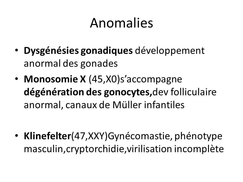 Anomalies Dysgénésies gonadiques développement anormal des gonades Monosomie X (45,X0)saccompagne dégénération des gonocytes,dev folliculaire anormal,