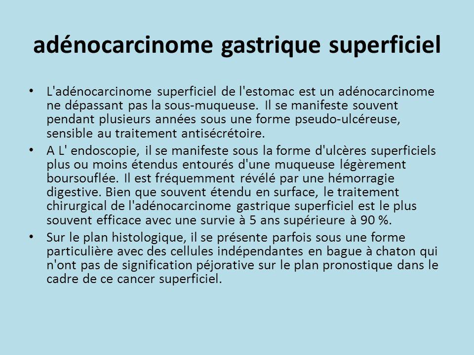 adénocarcinome gastrique superficiel L adénocarcinome superficiel de l estomac est un adénocarcinome ne dépassant pas la sous-muqueuse.