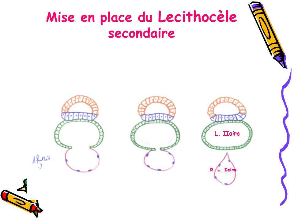 Mise en place du Lecithocèle secondaire L. IIaire R. L. Iaire