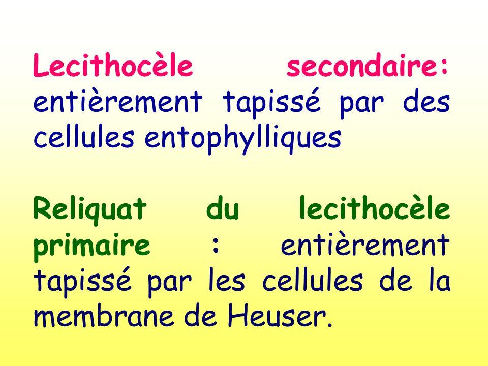 Lecithocèle secondaire: entièrement tapissé par des cellules entophylliques Reliquat du lecithocèle primaire : entièrement tapissé par les cellules de