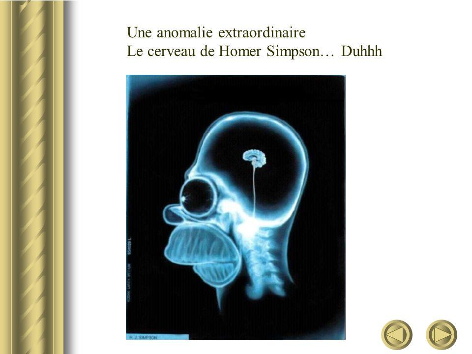Une anomalie extraordinaire Le cerveau de Homer Simpson… Duhhh