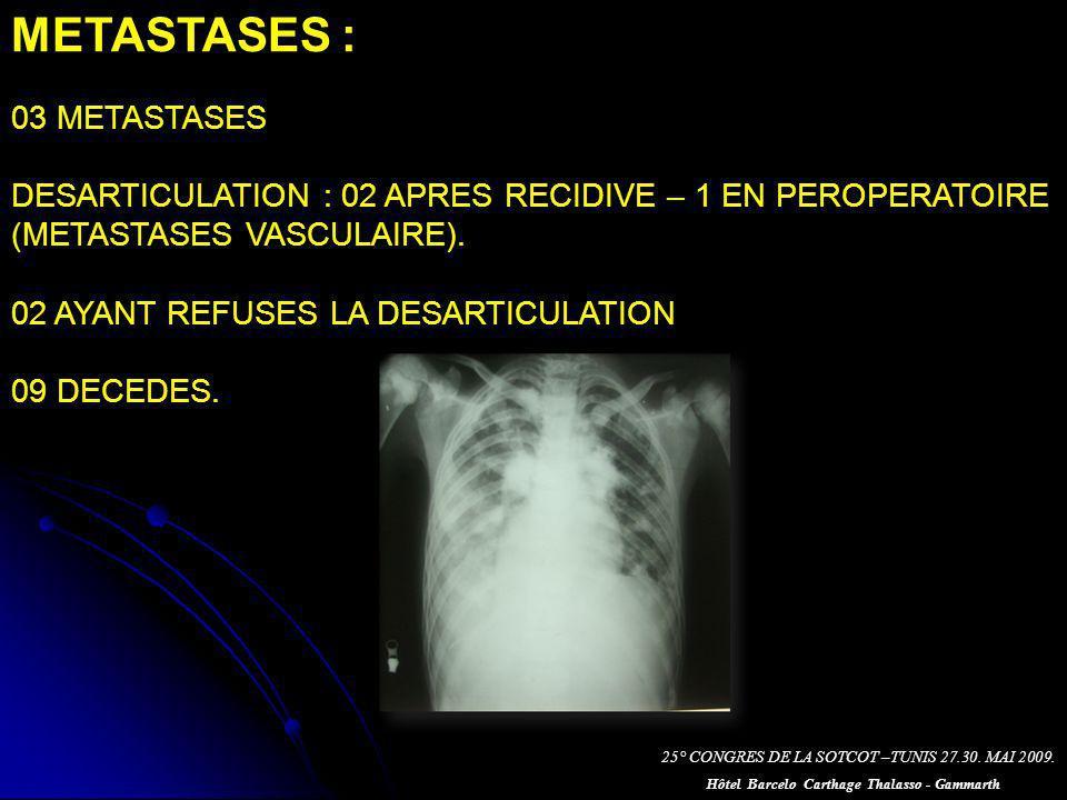METASTASES : 03 METASTASES DESARTICULATION : 02 APRES RECIDIVE – 1 EN PEROPERATOIRE (METASTASES VASCULAIRE).