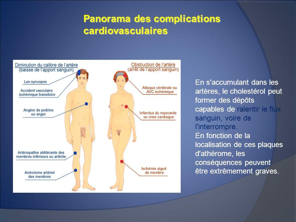 Panorama des complications cardiovasculaires En s'accumulant dans les artères, le cholestérol peut former des dépôts capables de ralentir le flux sang