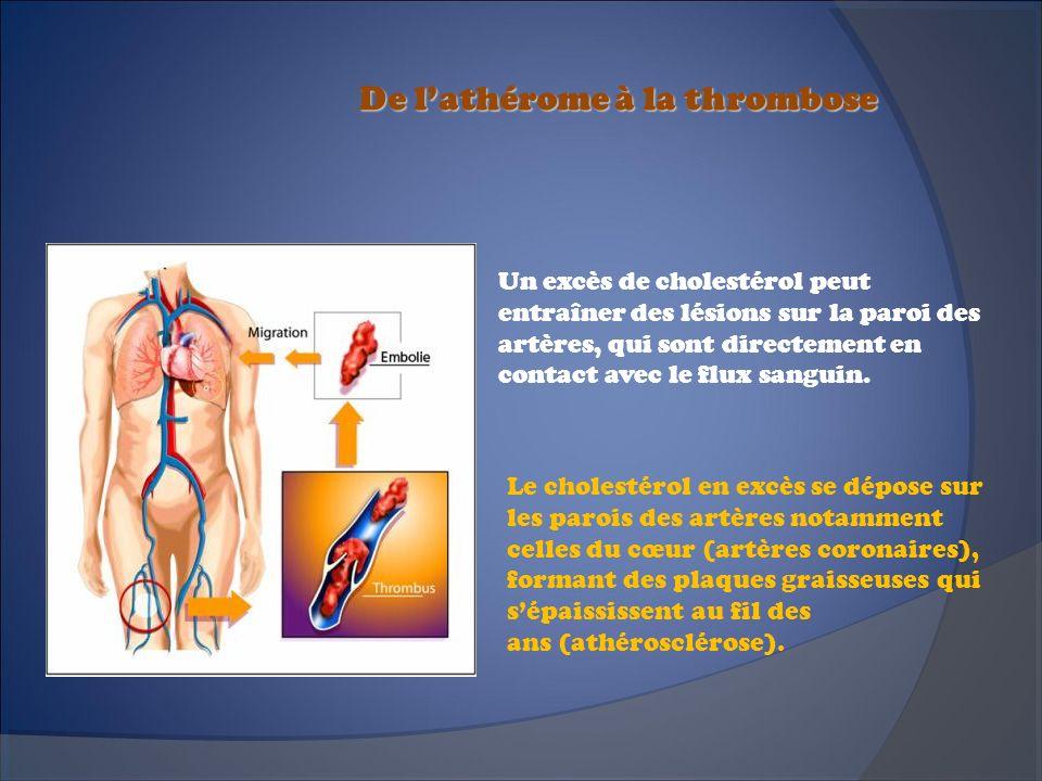 De lathérome à la thrombose Un excès de cholestérol peut entraîner des lésions sur la paroi des artères, qui sont directement en contact avec le flux