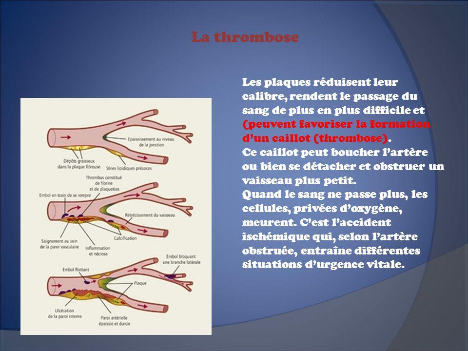 Trois grandes conséquences Les artères du cœur (artères coronaires), celles du cerveau (carotides et vertébrales) et des jambes sont particulièrement touchées.