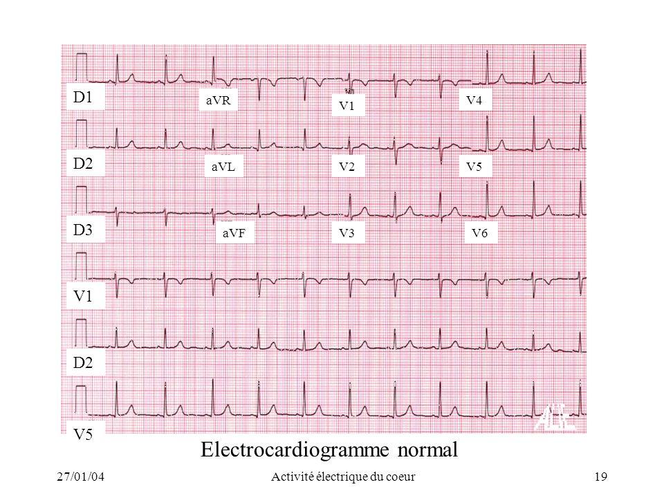 27/01/04Activité électrique du coeur19 D2 V5 D2 D3 V1 D1 aVR aVL aVF V1 V2 V3 V4 V5 V6 Electrocardiogramme normal