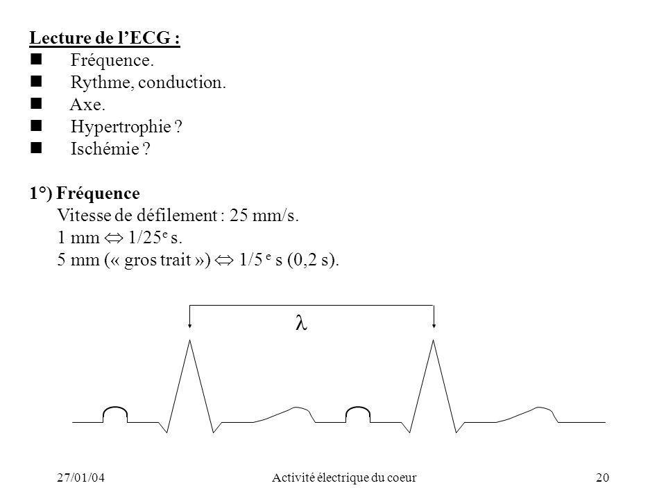 27/01/04Activité électrique du coeur20 Lecture de lECG : Fréquence. Rythme, conduction. Axe. Hypertrophie ? Ischémie ? 1°) Fréquence Vitesse de défile