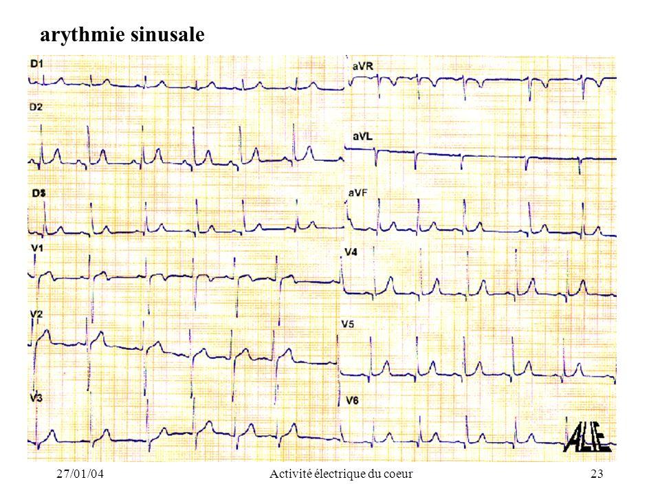 27/01/04Activité électrique du coeur23 arythmie sinusale