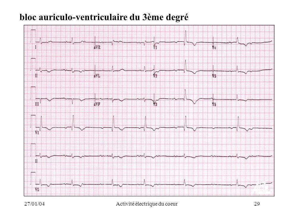 27/01/04Activité électrique du coeur29 bloc auriculo-ventriculaire du 3ème degré