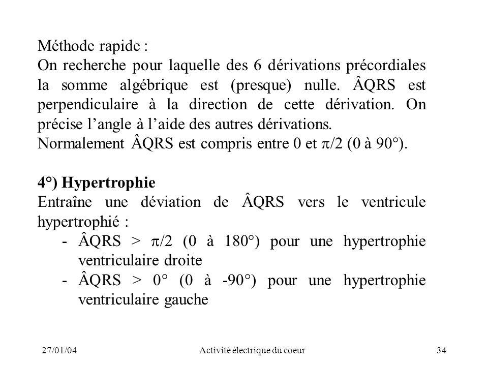27/01/04Activité électrique du coeur34 Méthode rapide : On recherche pour laquelle des 6 dérivations précordiales la somme algébrique est (presque) nu