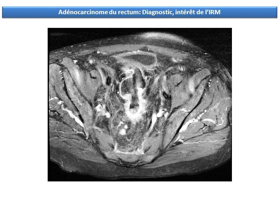 Adénocarcinome du rectum: Diagnostic, intérêt de lIRM