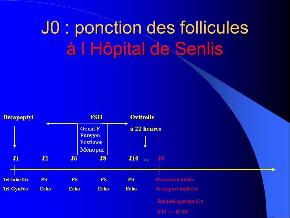 J0 : ponction des follicules à l Hôpital de Senlis DécapeptylFSH Ovitrelle à 22 heures Tel labo Gx PS PS PS PS Ponction à Senlis Tel Gynéco Echo Echo Echo Echo Transport mallette Gonal-F Puregon Fostimon Ménopur Recueil sperme Gx FIV+/- ICSI J1J2J6J8J10 …J0