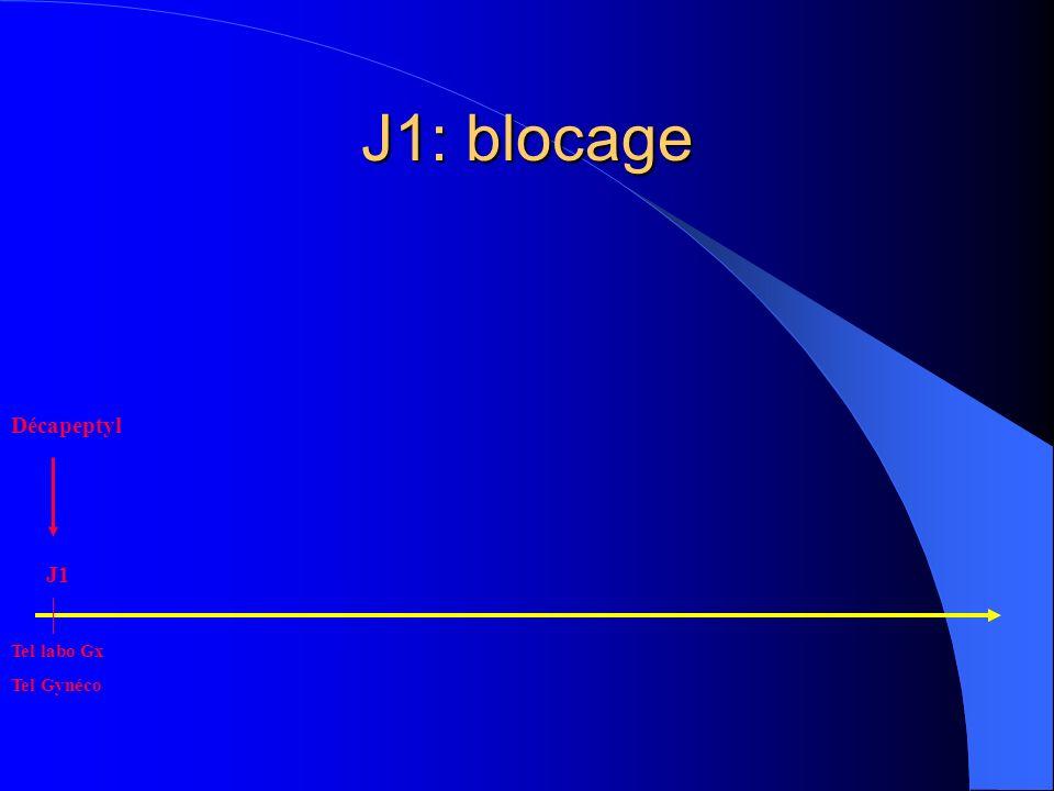 J1: blocage Décapeptyl Tel labo Gx Tel Gynéco J1