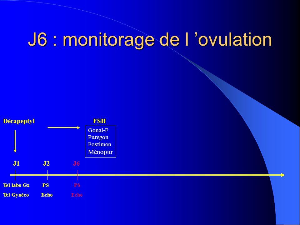 J6 : monitorage de l ovulation DécapeptylFSH Tel labo Gx PS PS Tel Gynéco Echo Echo Gonal-F Puregon Fostimon Ménopur J1J2J6